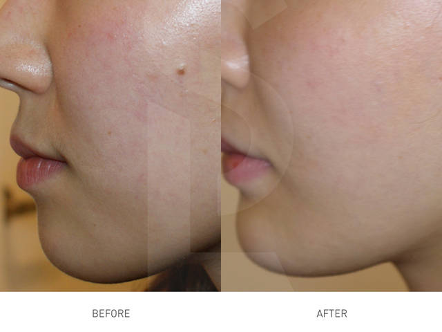 http://kor.skinlife.ca/treatments/mole-removal/ (229302)